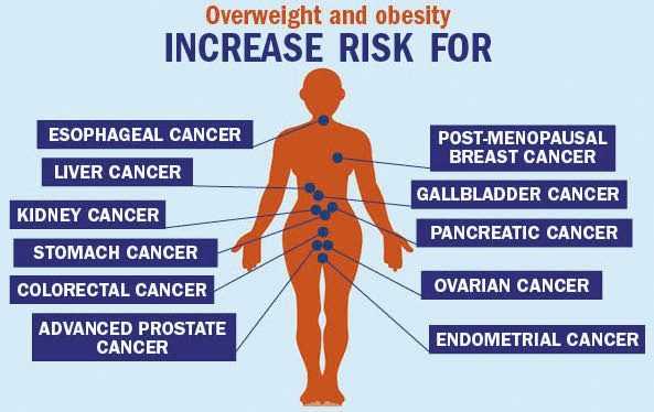 Reducing Risk by Rethinking Weight | AICR, American Institute for Cancer Research, Obesity, Overweight, Cancer Risk, Obesity Week, Nigel Brockton, Alice Bender, New American Plate Challenge