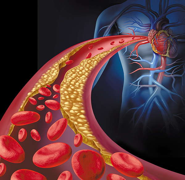 Updated Cholesterol Guidelines Take a Personalized Approach