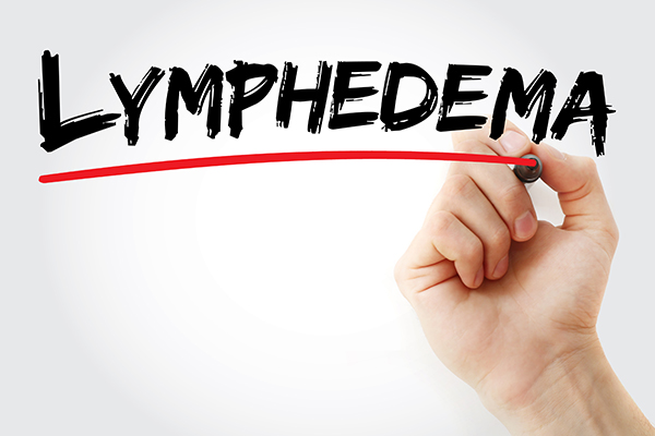 March 16: Free Seminar On Lymphedema Awareness Set In Smyrna